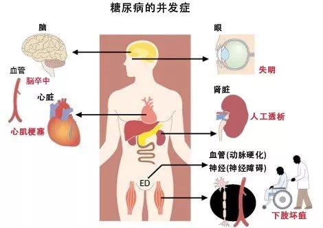 二型糖尿病血糖值_这个动物模型,对糖尿病研究很有用-人物-转化医学网-转化医学 ...