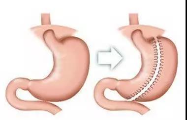 武汉胃旁路手术_北京医院 胃旁路手术_什么是胃旁路手术