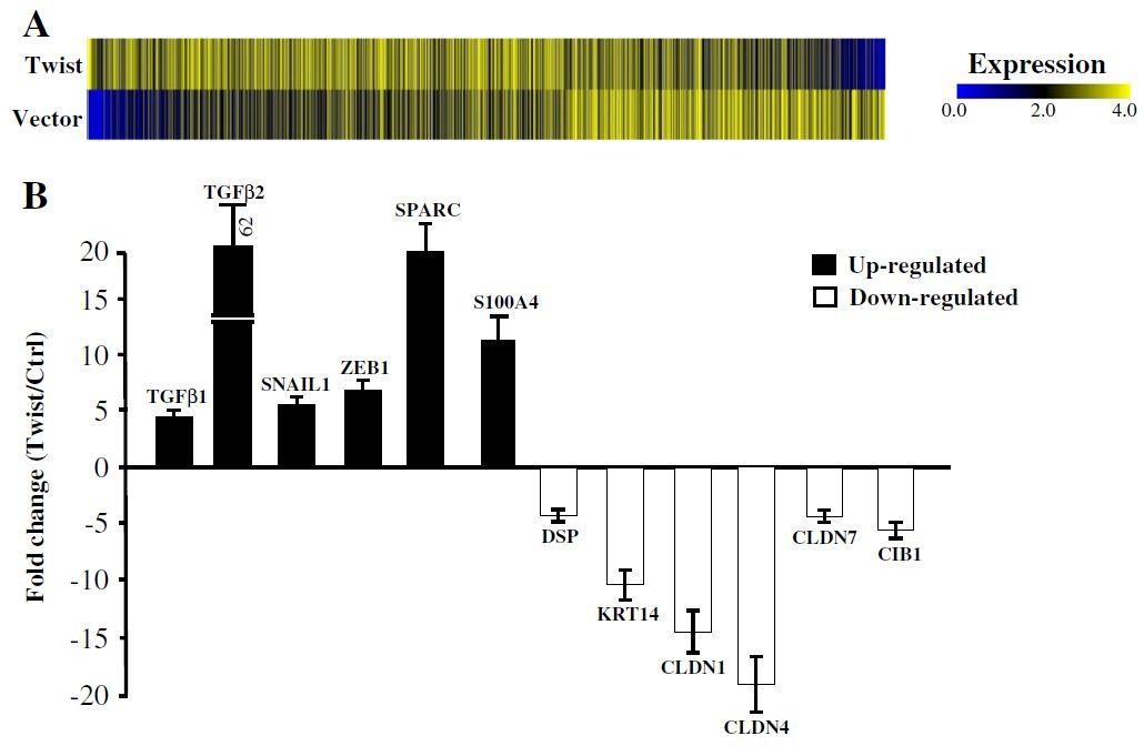上皮细胞到间质细胞的转化(EMT)和肿瘤转移密切相关。近年来的研究表明lncRNA作为调控因子参与了复杂的生物学过程和疾病的发生发展。来自重庆中医药大学的研究人员利用lncRNA芯片筛选,找到了肿瘤细胞迁移相关转录因子Twist诱导的EMT过程相关lncRNA和mRNA,为我们更好的理解肿瘤转移过程中Twist通过影响lncRNA而诱导EMT的过程提供了新的见解。 研究背景 乳腺癌是一种常见的肿瘤,同时,乳腺癌也是一种极易复发和发生